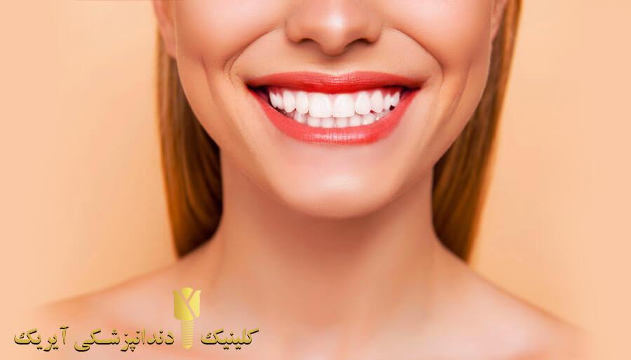 قیمت لمینت دندان سال 1400