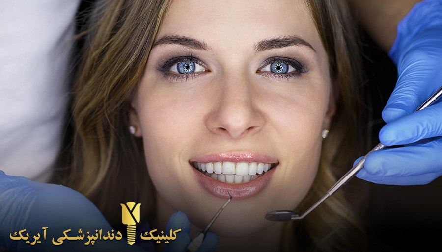 دوام و ماندگاری بلیچینگ دندان