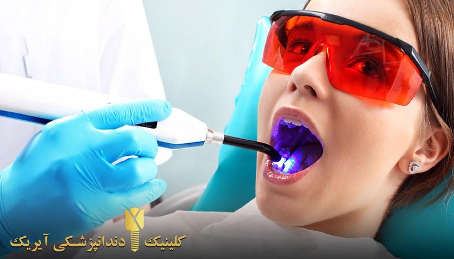انواع سفید کردن دندان